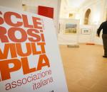 Sclerosi multipla, aumenta l'incidenza nel mondo e in Italia